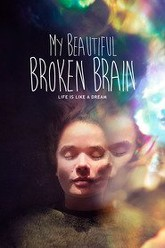 My Beautiful Broken Brain Trailer